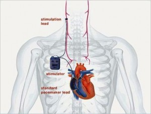 An illustration of the CardioFit device